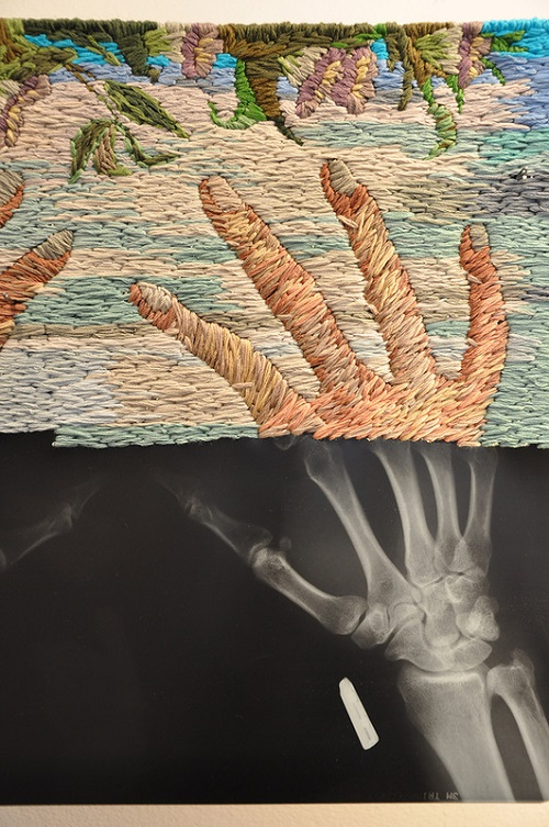 Embroidered x-rays by American artist Matthew Cox