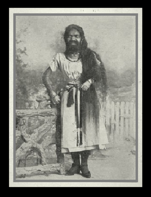 Hairy men and their fate. Krao Farini, 1876, from Thailand, was completely covered with hair from birth