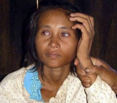 Rochom Pn'gieng (the Cambodian Jungle Girl)