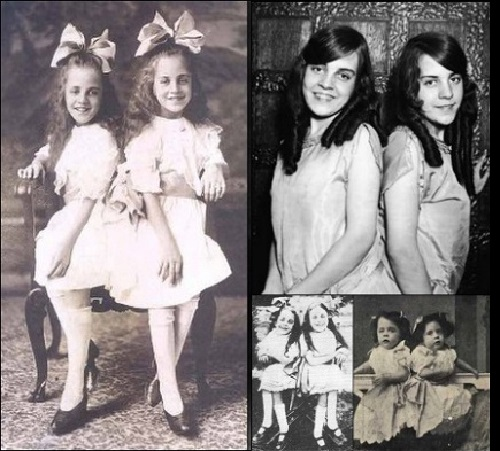 Daisy and Violet Hilton. On the stage since childhood