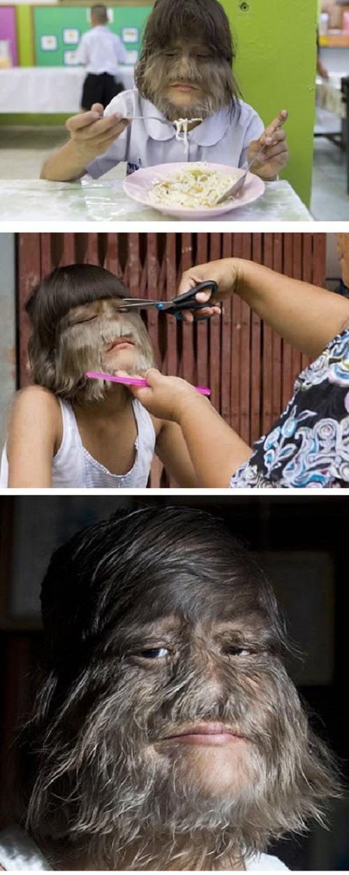 Hairy People
