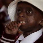 Diagnosed with Progeria Girl