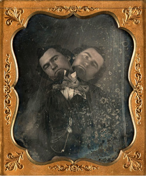 'Two-headed man' by unknown artist, American, ca. 1855. daguerreotype, Nelson Atkins museum