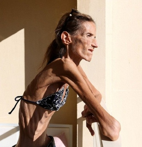 39 year-old Valeria has a severe disease – anorexia, weighs 25 kg