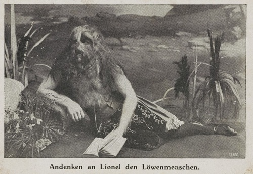 Hairy men and their fate. 1918 Lionel the Lion Faced Boy