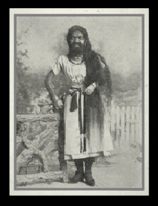 Krao Farini, 1876, from Thailand, was completely covered with hair from birth