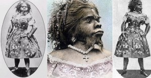 She suffered hypertrichosis, her face and body, except the palms and soles were covered with straight black hair, thick rigid.