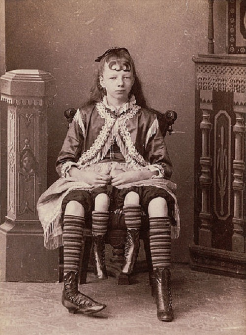 Josephene Myrtle Corbin Four-Legged Girl from Texas